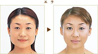 【顎顔面口腔外科】オトガイ短縮術(顎を短くす …